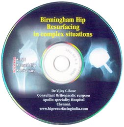 Birmingham Hip Resurfacing in Complex Situations - Free CD - Teaching & Demo