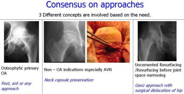 Consensus on approaches